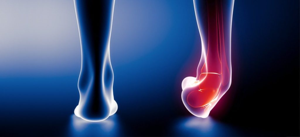 the-difference-between-strains-and-sprains