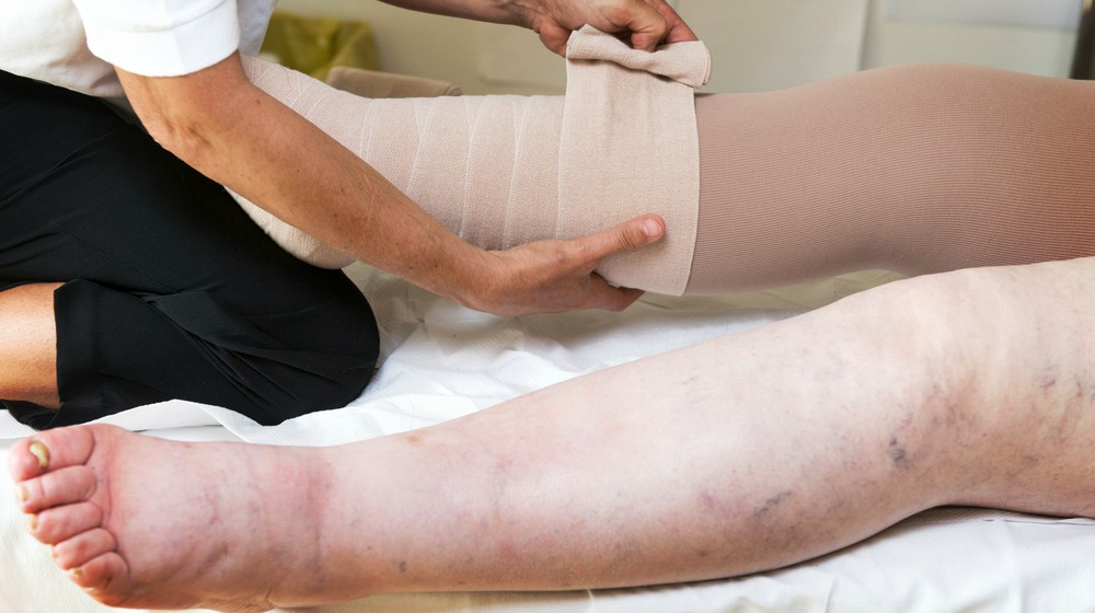 Lymphedema Treatment Foothill Ranch and Lake Forest